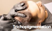 gallery-trichopigmentation